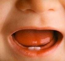 Remèdes à la maison pour les douleurs de dentition