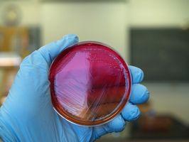 Tests d'identification des bactéries