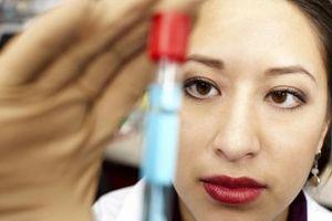 La différence entre biochimie et biologie chimique