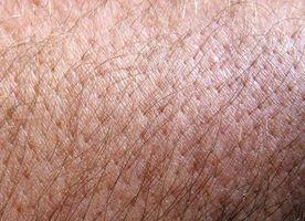 Remèdes à la maison pour éruptions cutanées Itchy