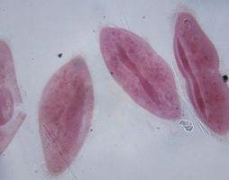 Qu'est-ce que Adaptations protistes besoin de vivre dans Termites?