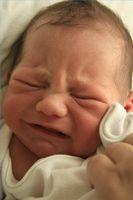 Quels sont les symptômes de B-12 l'anémie chez un bébé?